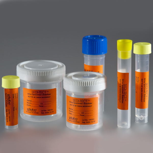 Urine Stabilization Products